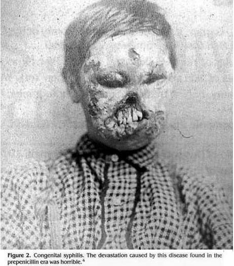 This is what syphilis could do, before penicillin was discovered