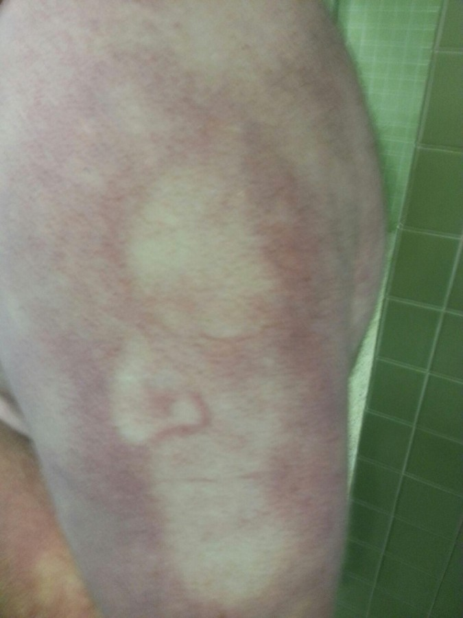 Pushed my face into a friend's arm. He has pretty bad Rosacea.
