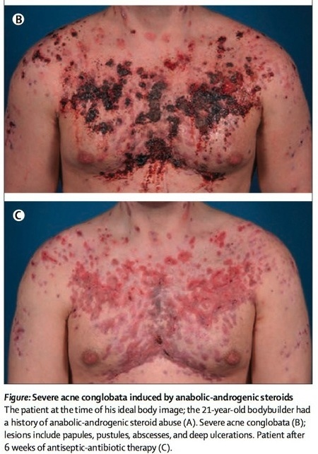 Severe acne induced by anabolic steroids