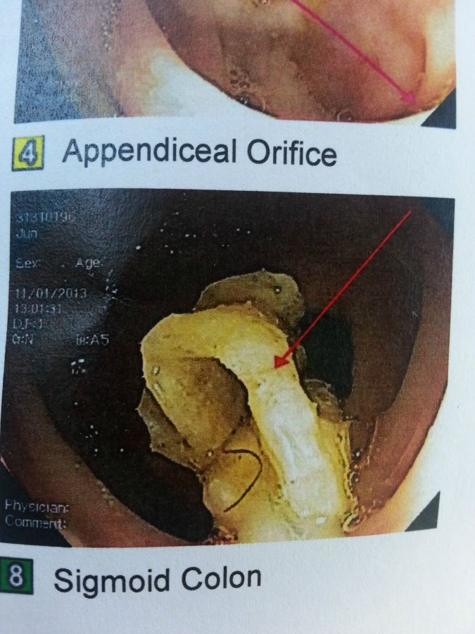GI specialist found gauze stuck in my colon from my wisdom teeth extraction…8 years ago.