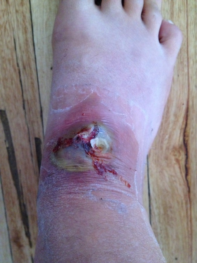 TIL to take care of blisters in foreign countries.