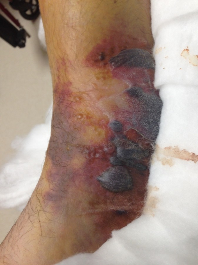 Fracture blisters | DermNet New Zealand