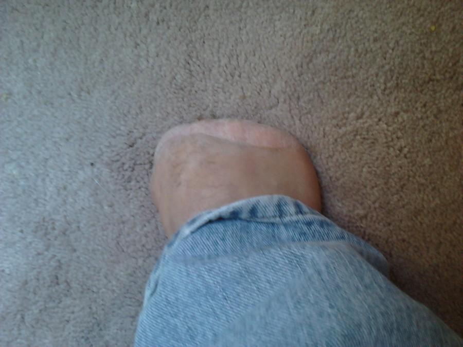 Speaking of toes….