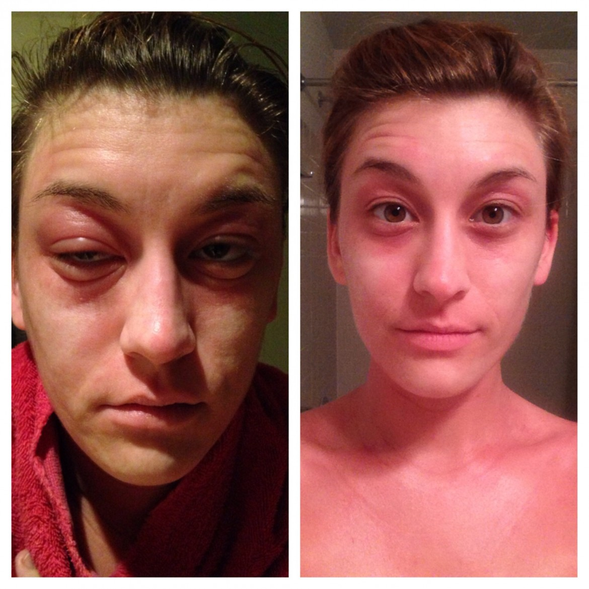 Bactrim Allergic Reaction Before