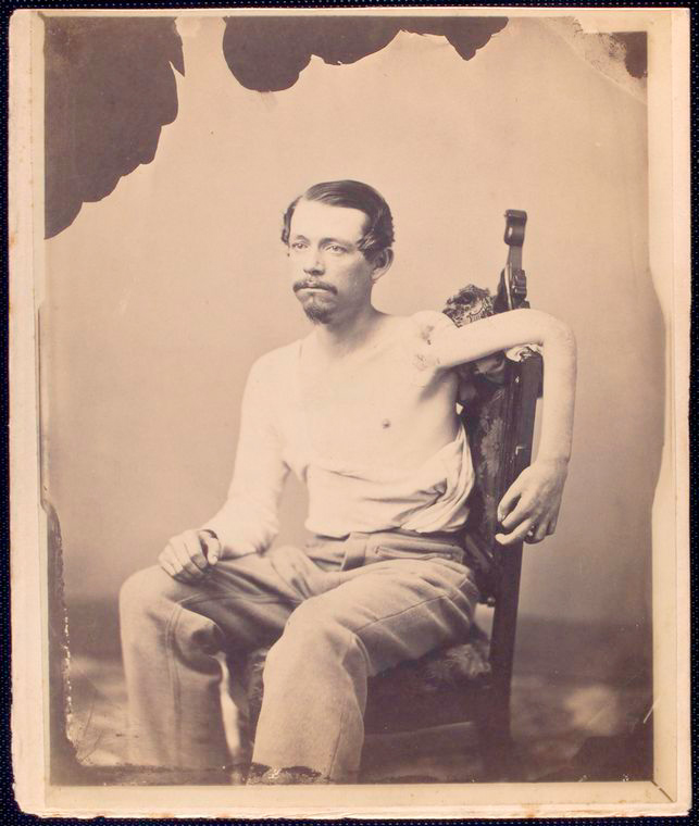 John F Claghorn – had his humerus bone surgically removed (1860s pic)